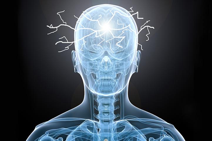 noticia_01-epilepsia